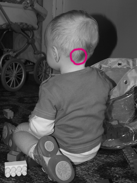 Вылечить сопли у ребенка в 6 месяцев