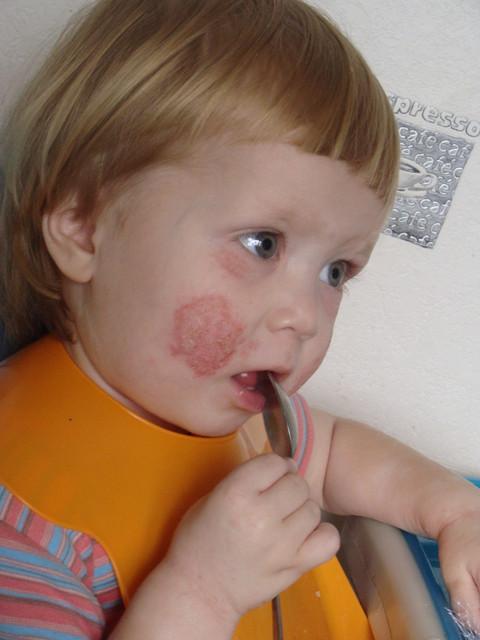 аллергия на колготки капроновые фото